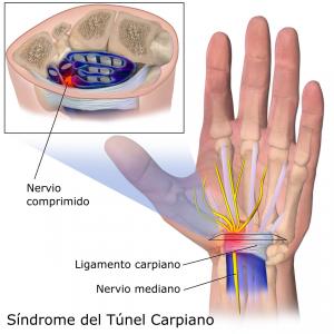 Ilustración de los nervios de la mano. Se muestran los nervios para explicar el síndrome del túnel carpiano