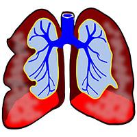 Ilustración de los pulmones. Se ven los dos pulmones sin más información.