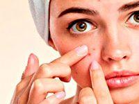 Fotografía de una mujer señalando una espinilla o barro en la cara