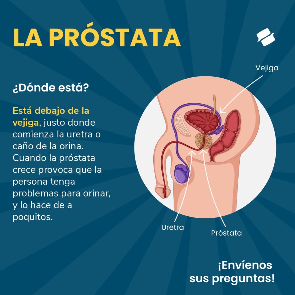 Ilustración que muestra la ubicación de la próstata, justo bajo la vejiga.